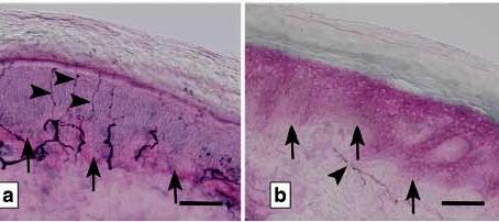 Diagnosi e trattamento del dolore nella neuropatia delle piccole fibre