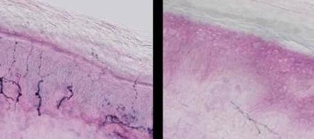 Neuropatia delle piccole fibre: Getting bigger!!