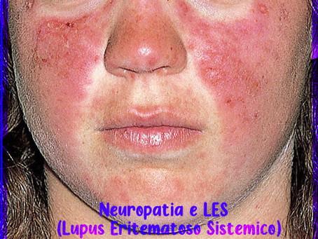 Neuropatia e Lupus Eritematoso Sistemico