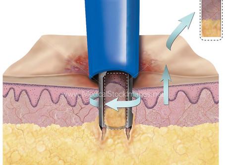 Follow-up longitudinale della NPF provata da biopsia