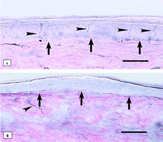 Andamento a lungo termine di neuropatia idiopatica delle piccole fibre.