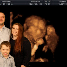 Picture 1 with Ultrasound of new family member