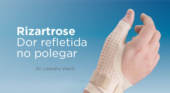 Rizartrose: a artrose que dói no polegar