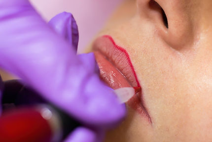 Woman getting the outline of her lips microbladed.
