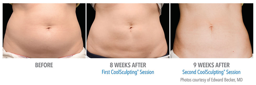 CoolSculpting Before/After Stomache Abdomen Front