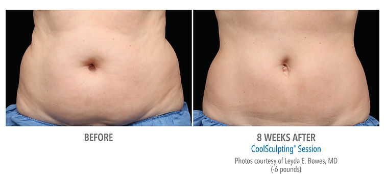 CoolSculpting Before/After Abdomen Front