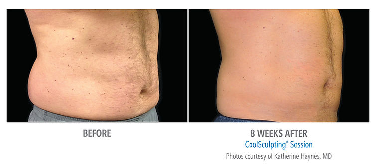 CoolSculpting Before/After Men Abdomen Front
