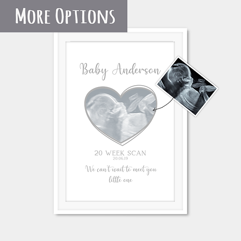 Personalised Baby Scan