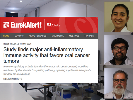 Study finds major anti-inflammatory immune activity that favors oral cancer tumors