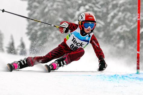 Game Keeper's Thumb Common Ski Injury