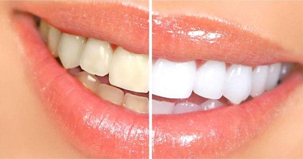 izbjeljivanje-zubi-iskustva.jpg