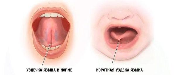 Korotkoe-i-normal-noe-uzdechko-yazy-ka.j