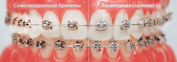 Metal-braces-.jpg