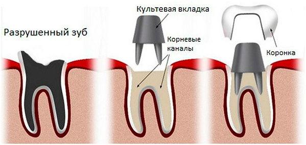 kyltevaia-vkladka-2.jpg