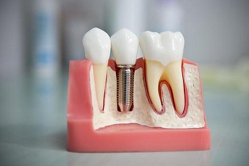 Имплантация зубов в Твери.jpg