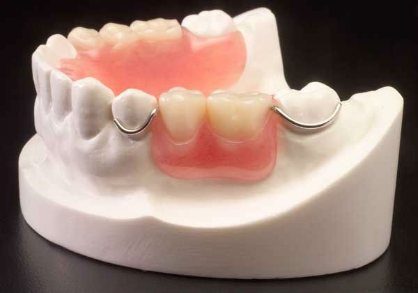Dentures-clasp-1.jpg