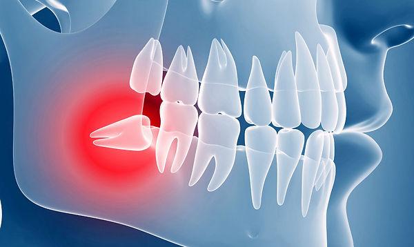 retinirovanniy-zub.jpg