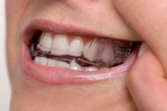 oral-appliance-therapy-dracut.jpg