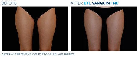 before-after-BTL-Vanquish-ME-female-legs