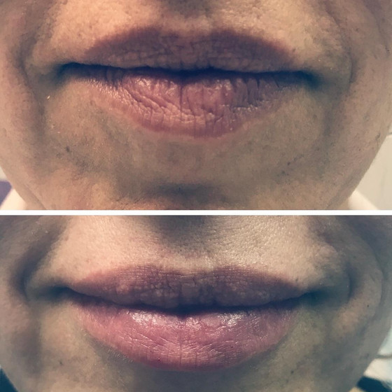 Non-Surgical Lip Enhanchment