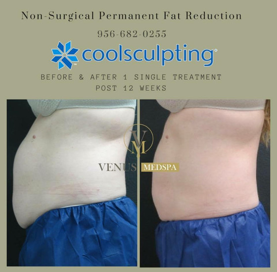 The Liposuction Alternative