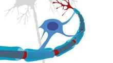 Un tratamiento personalizado con células madre puede ayudar en la Esclerosis Múltiple Progresiva