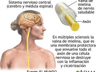 Frenar el deterioro de la mielina, clave para evitar la discapacidad en la EM