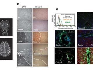 Descubren una molécula clave en la transmigración de los linfocitos T al sistema nervioso central