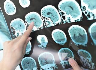 Descubren un nuevo tipo de esclerosis múltiple