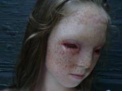 DEFORMED GIRL