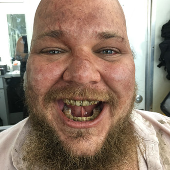 Dirt - Teeth - Sunburn - Elemental exposure