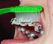 Hold the brush at a 45º angle toward the braces