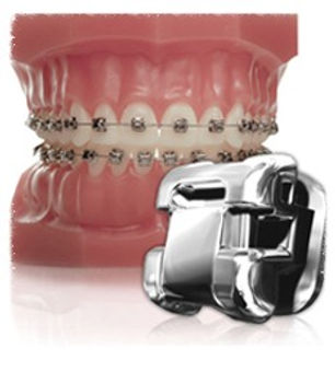 Self-Ligatig Braces