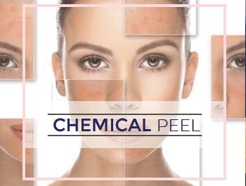Chemical Peel 1 & 2