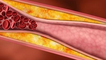 colesterol_20377_l.jpg