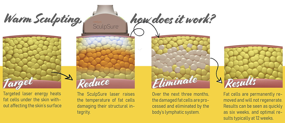 Sculpsure HOw-01.jpg