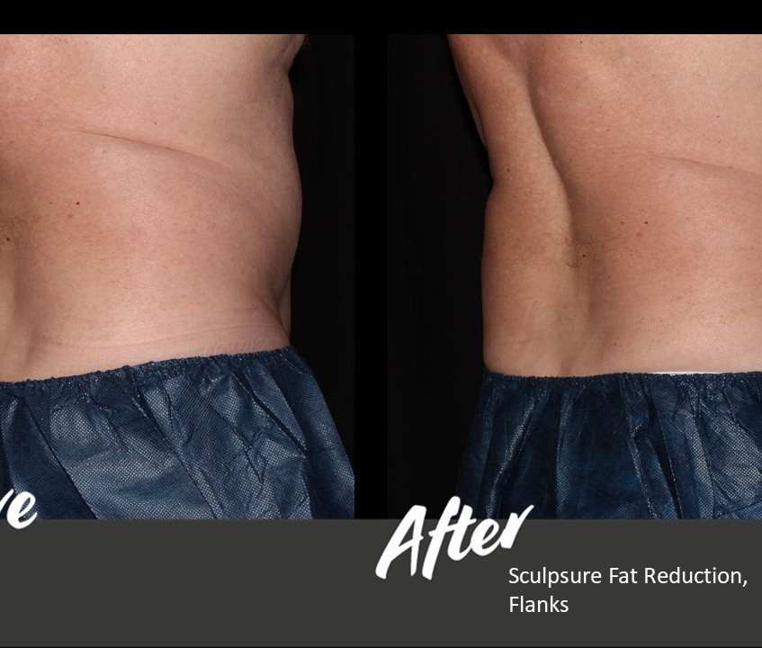 Warm Sculpting with Sculpsure