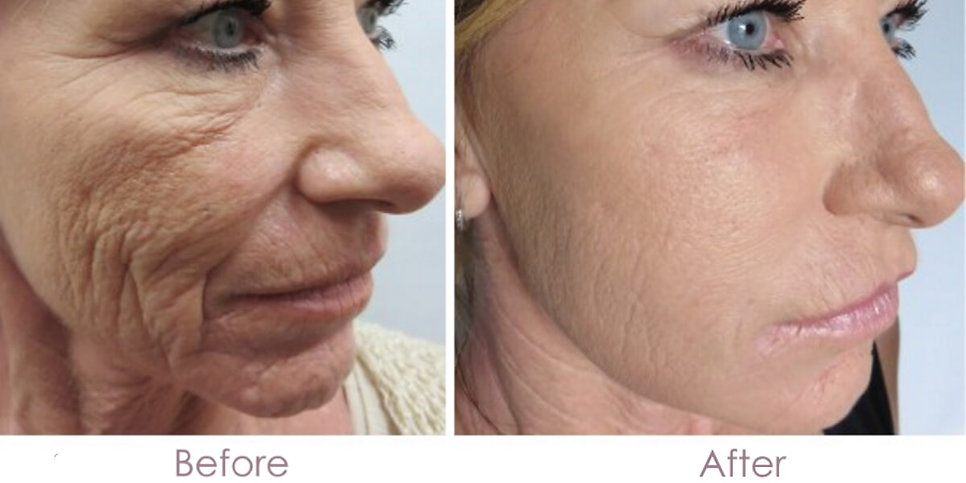 before-and-after-microneedling-5-1.jpg