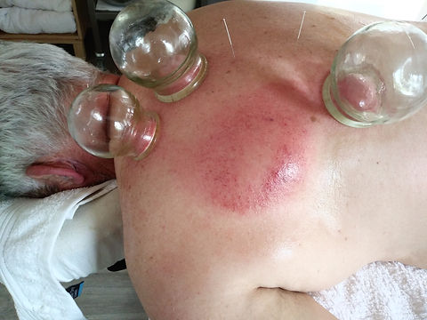 Cupping for shoulder pain. Bowral Acupun