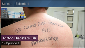 Laser Tattoo Removal Swansea