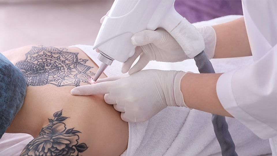 Laser-Tattoo-Removal-Clinic.jpg