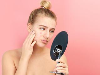 A acne aumentou no confinamento? Saiba o que pode estar causando o problema