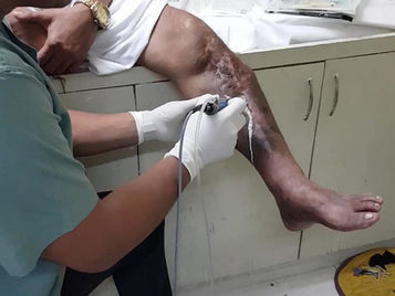 Typical Ultrasound Assisted Wound Debridement Session.