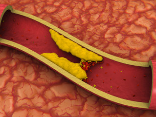 Fats, cholesterol, and your health  Part I