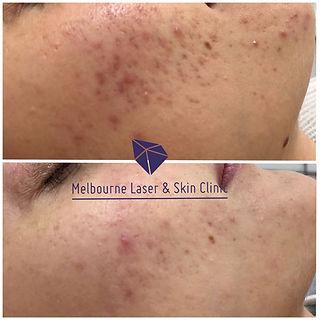 Melbourne Laser & Skin Clinic acne, acne scars, skin needling