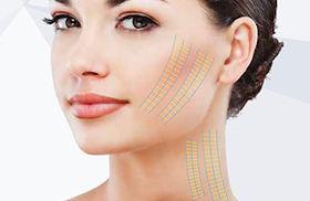 Laser Hair Removal | Australia | Melbourne Laser & Skin Clinic