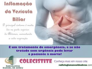 Colecistite Aguda - sintomas e tratamento