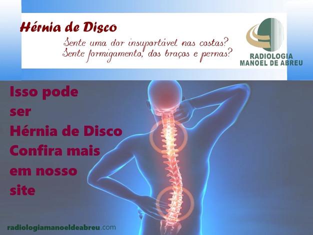 sintomas da hérnia de disco na coluna cervical