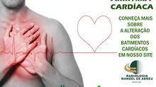 Arritmia Cardíaca