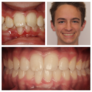 Increased overbite and class II